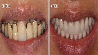 Full mouth reconstruction Things to Know
